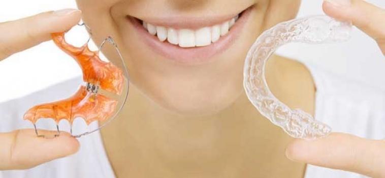 Ortodonzia invisibile: Tecnica Invisalign