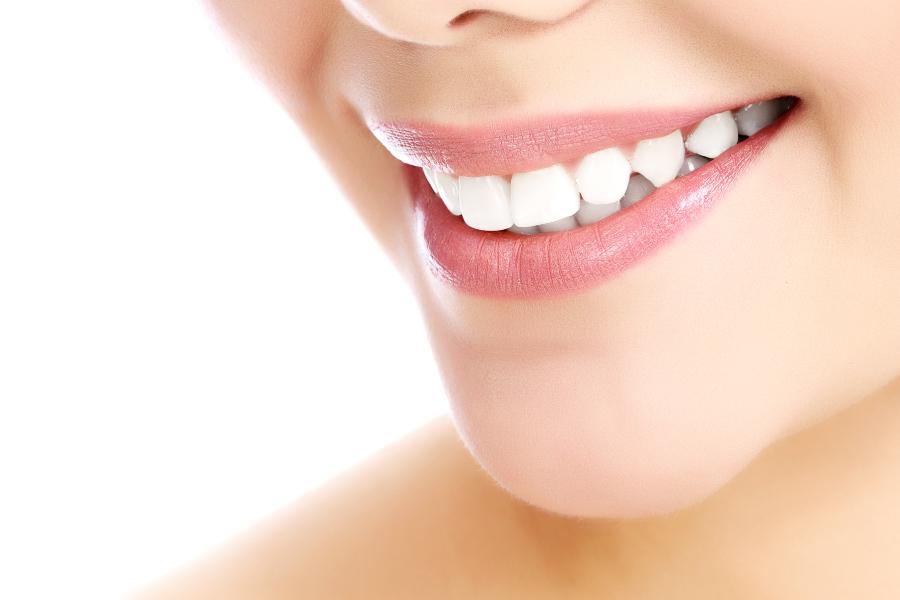 Sbiancamento dentale Clinica del Sorriso