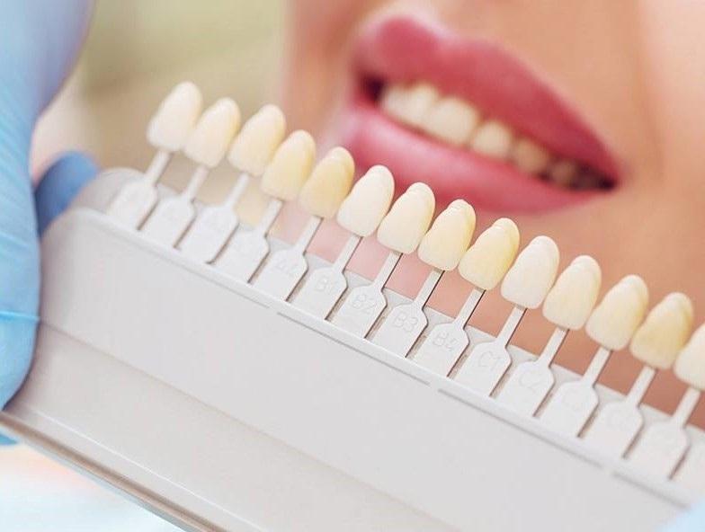 faccette estetiche clinica del sorriso