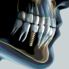 COMPLICANZE IMPLANTOLOGIA DENTALE THIENE