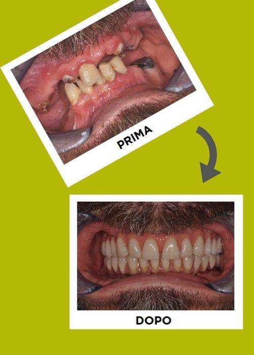 Prima e dopo impianti dentali dentista thiene Clinica del Sorriso