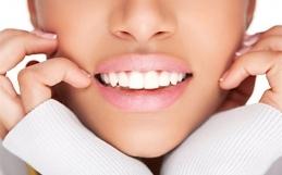 Sbiancamento dentale fai da te: i miti da sfatare