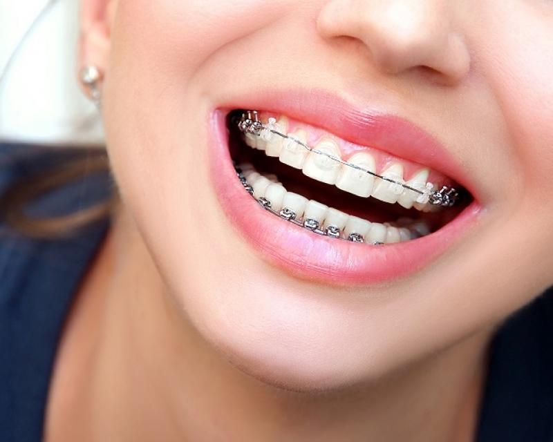 igiene orale con apparecchio ortodontico