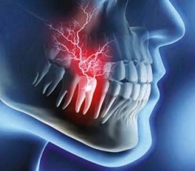 conseguenze recessioni gengivali dentista thiene Clinica del SORRISO