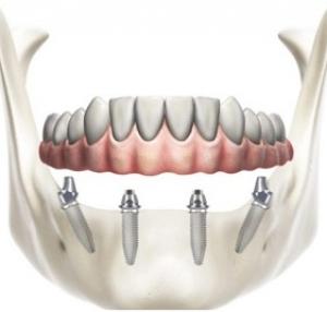 iMPLANTOLOGIA allon4 dentista thiene clinica del sorriso
