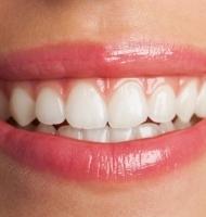 Faccette dentali con o senza limatura
